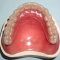 歯科 顎関節症 日進市 歯周病 口腔外科